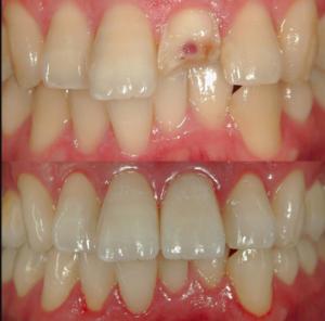 歯を破損した場合の歯科治療