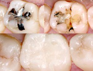 銀歯からセラミックへ