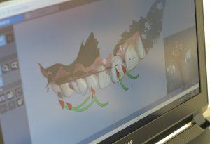 デジタル検査(歯列矯正)