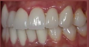審美歯科のイメージって?