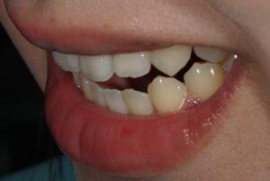 歯列矯正で綺麗に早く仕上がる一番大事なコト