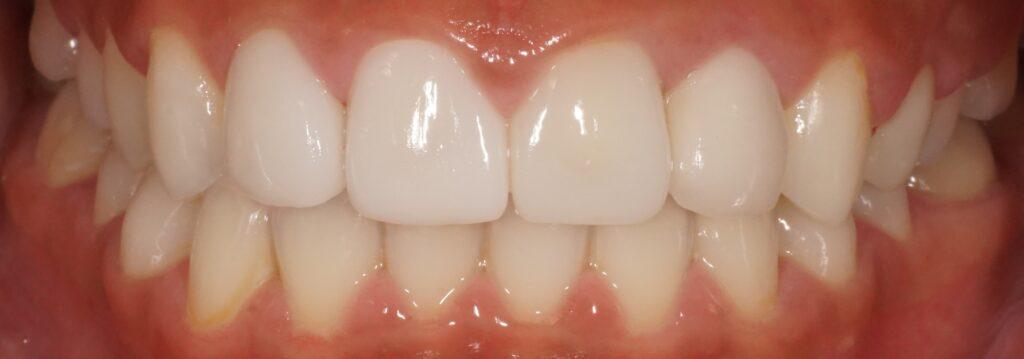 前歯のセラミック 歯列修正 やりなおし治療しました。